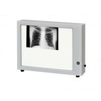 Негатоскоп нт-48м медицинский